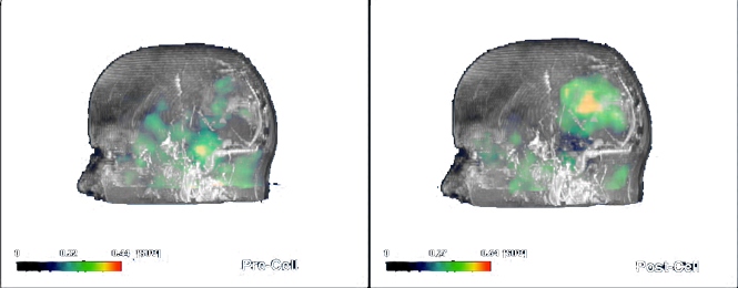Clinical image of Pre/Post PET scan